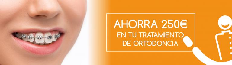 Ahorra 250€ en tu tratamiento de ortodoncia