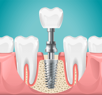 Dibujo implante dental