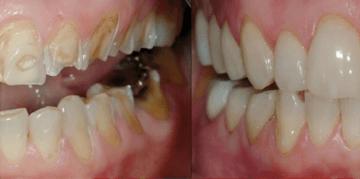 Antes y después de un tratamiento con la Técnica de los 3 Pasos para pacientes con desgaste dental